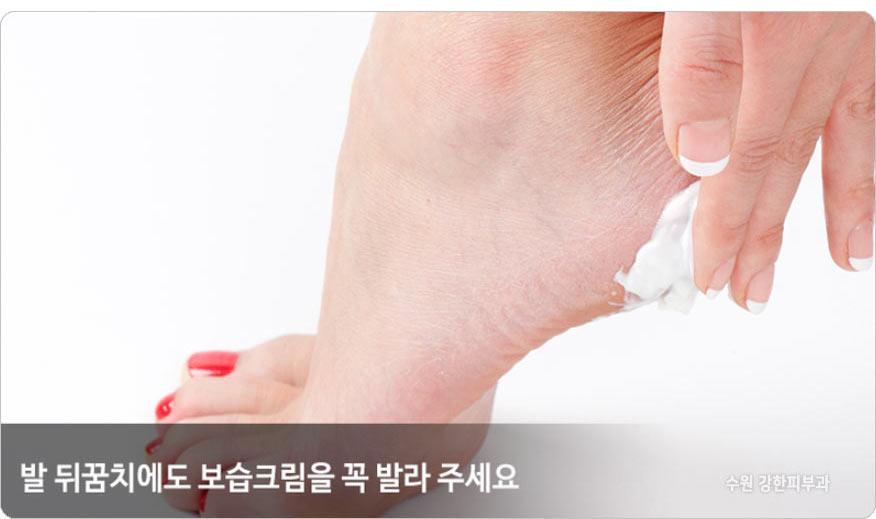 발 뒤끔치 보습관리