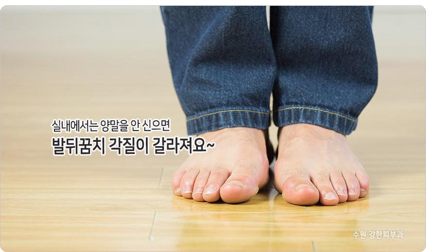 발 각질 원인