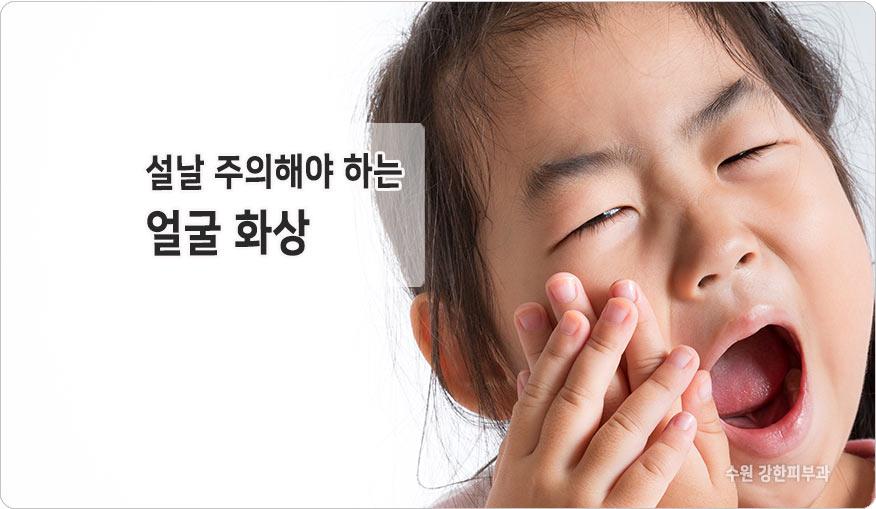 얼굴 화상 치료