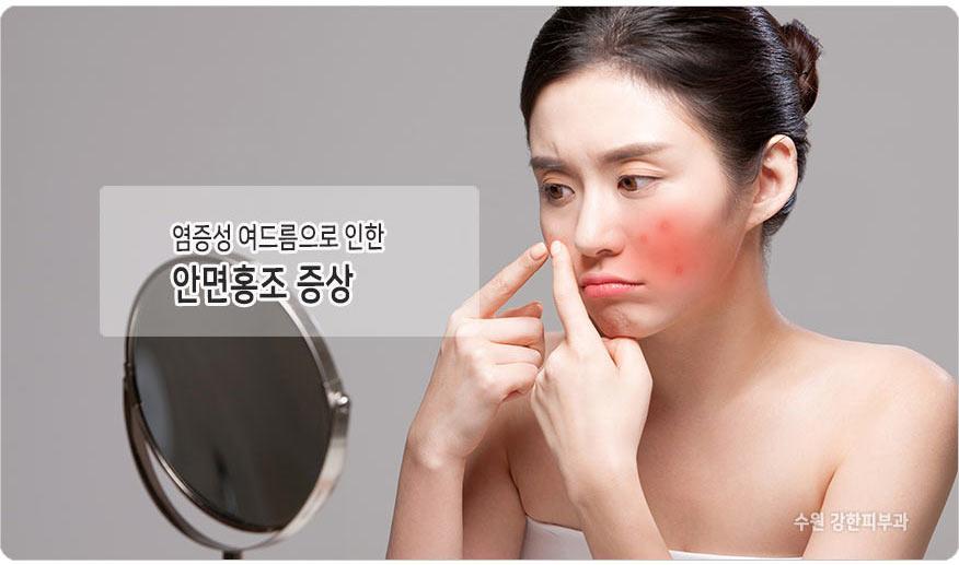 여드름성 홍조 원인