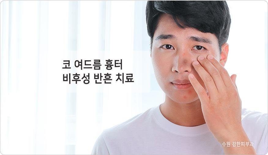 코 여드름 흉터 비후성반흔