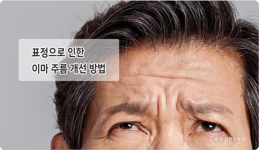 표정으로 인한 이마주름 개선방법