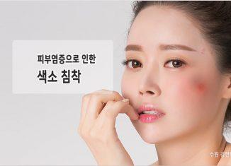 피부염증으로 인한 색소침착