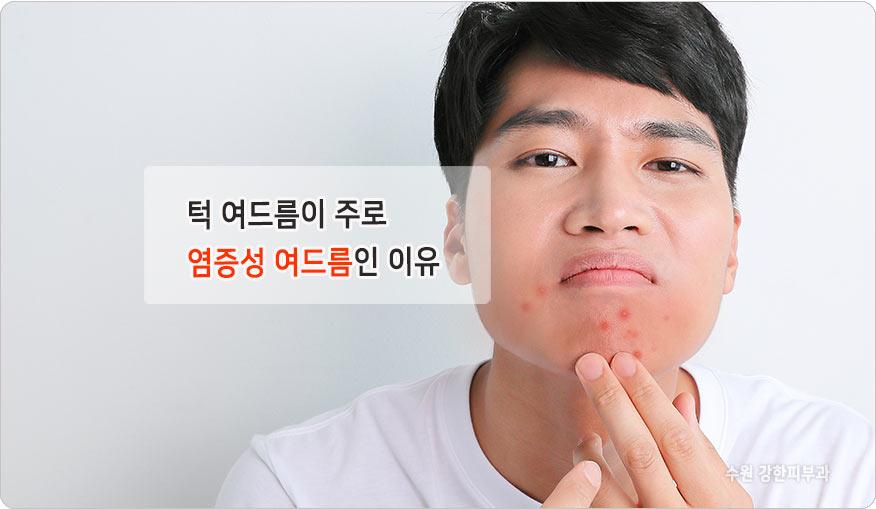 염증성 턱여드름 원인