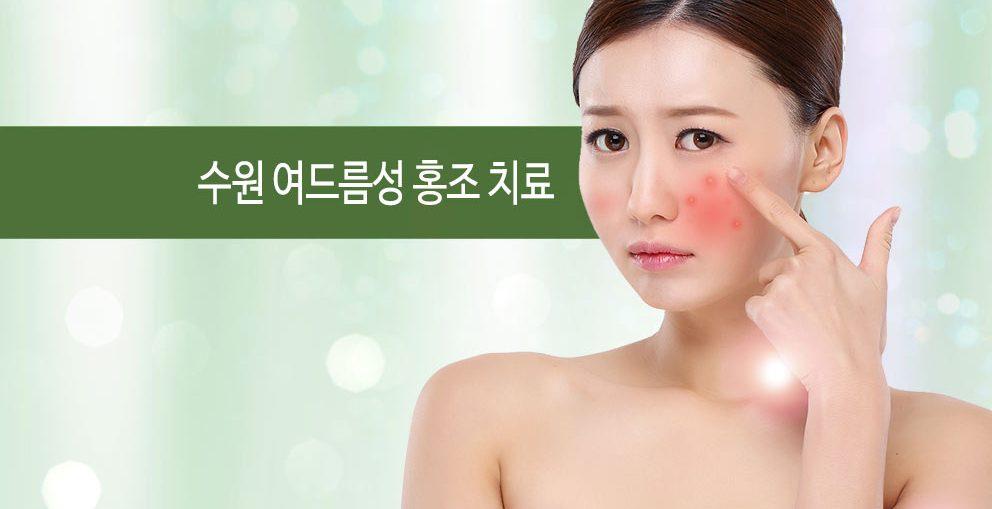 수원 여드름성 홍조 치료