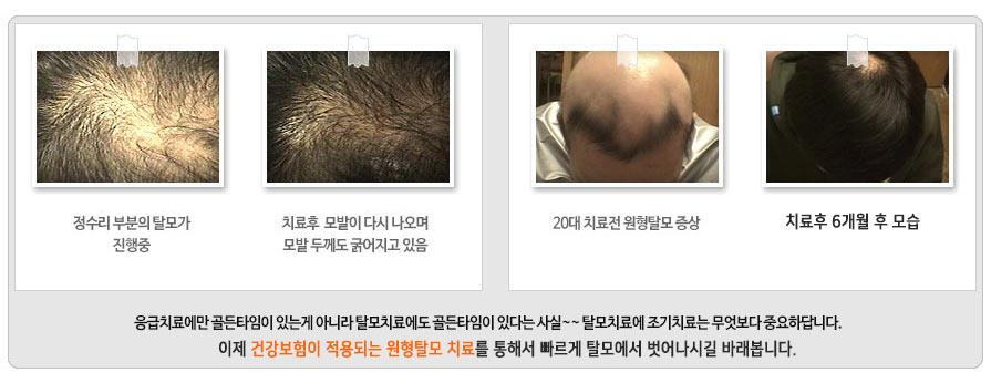 수원 원형탈모 치료