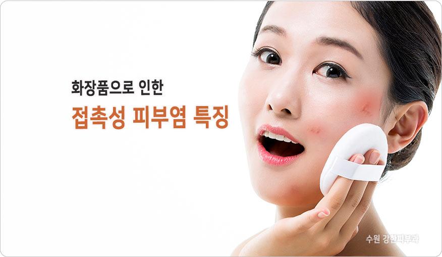 화장품 접촉성 피부염