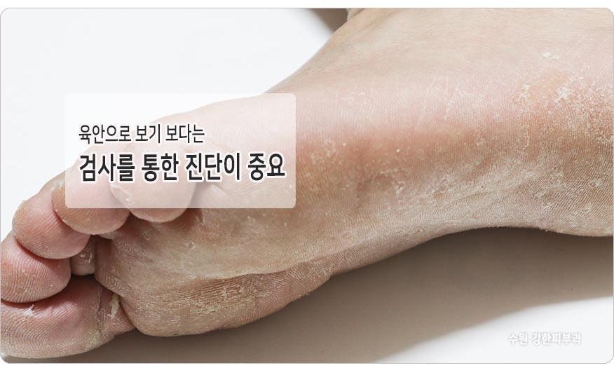 발뒤꿈치 무좀 검사 필요한 이유