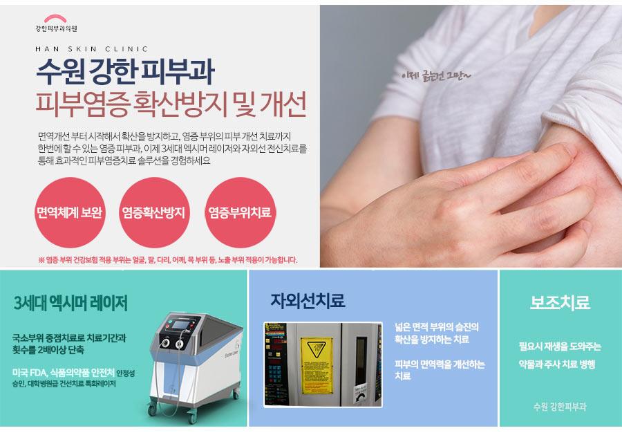 피부염증 엑시머 치료