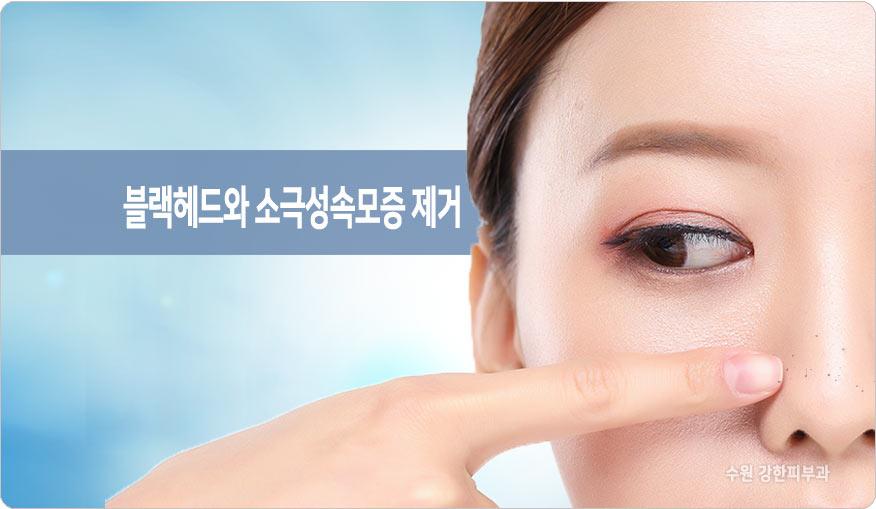 소극성속모증 제거 피부과