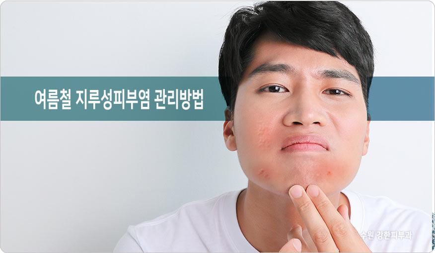 여름철 지루성피부염