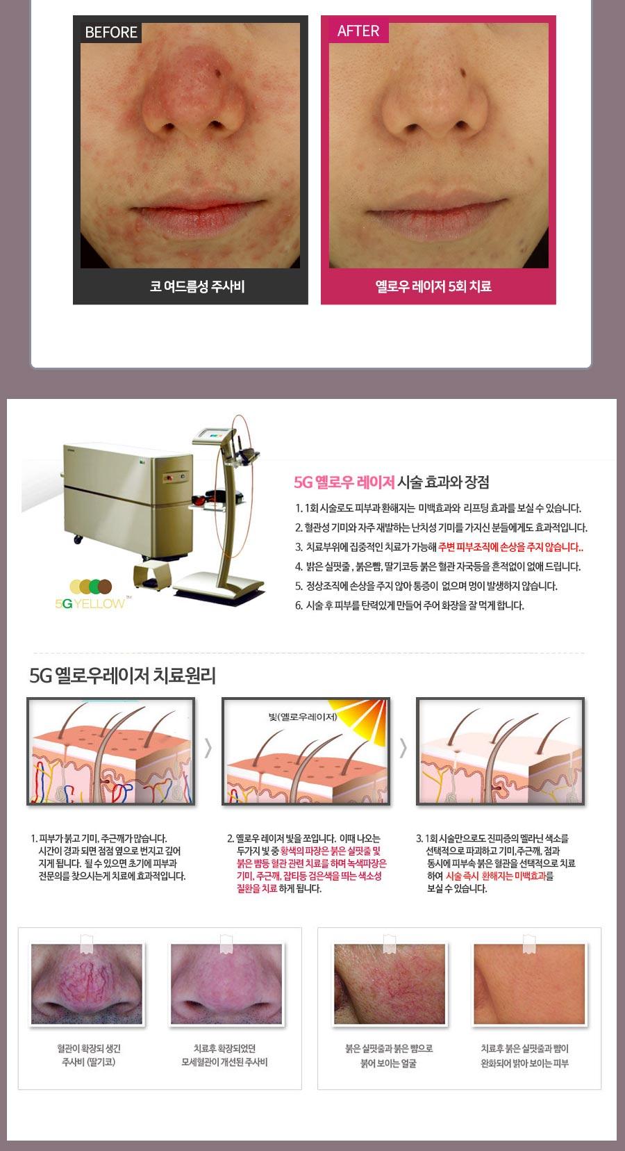 수원 5G 옐로우토닝 치료