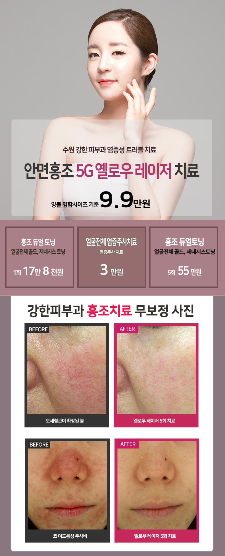 수원 홍조 치료