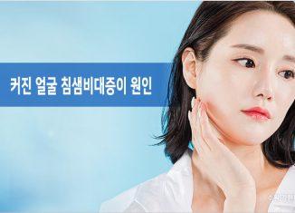 얼굴 침샘비대증 원인