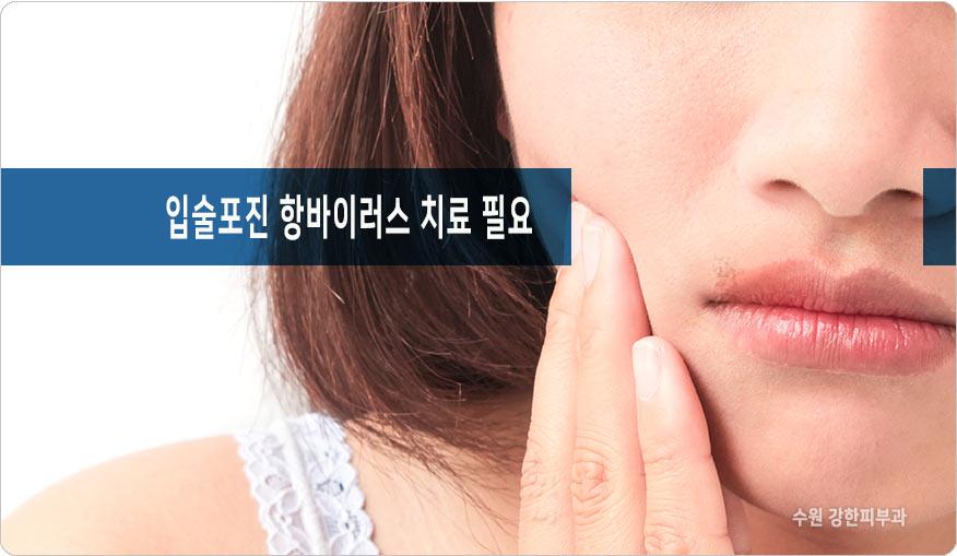 수원 입술포진