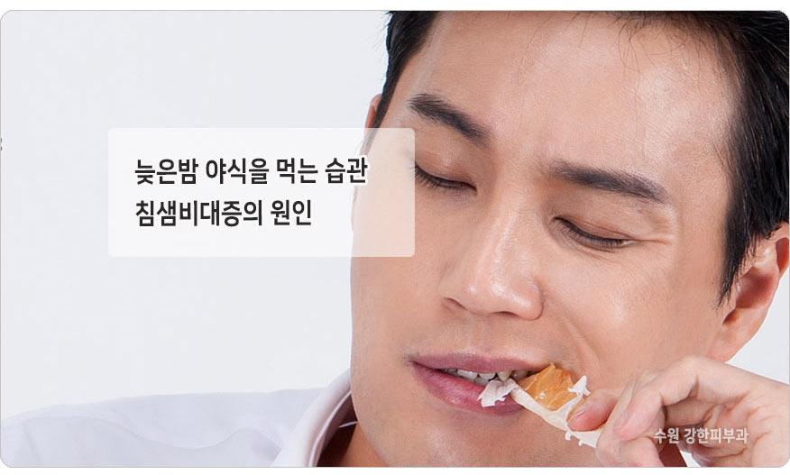 침샘비대증 원인
