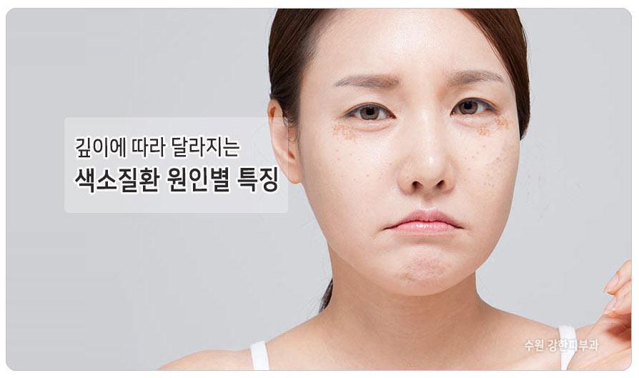 피부 색소 치료 달라야 하는 이유