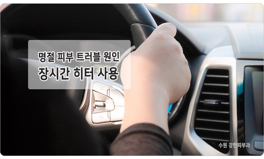 차량 히터로 인한 피부손상