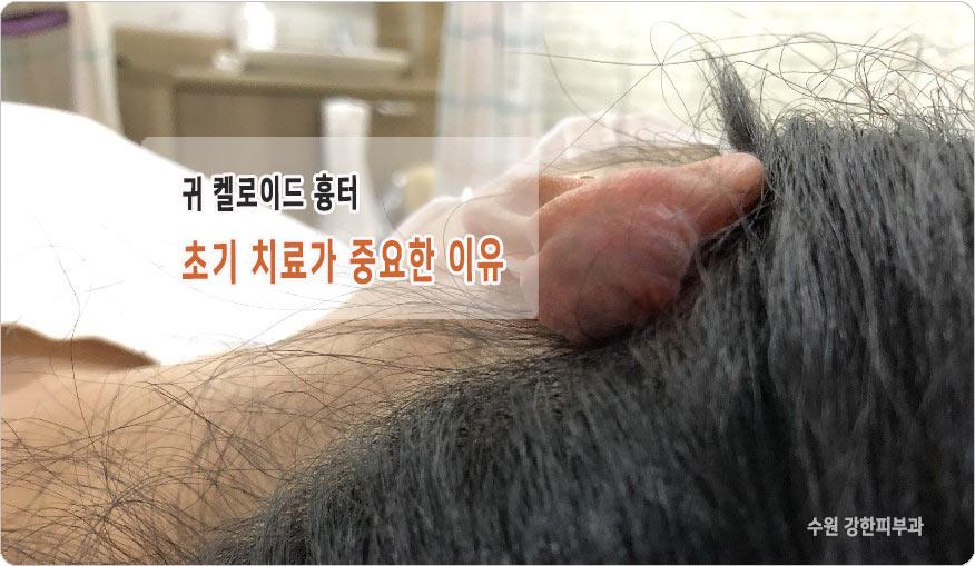 귀 켈로이드 흉터 증상