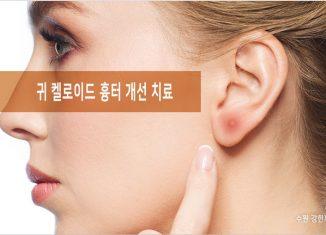 귀 켈로이드 흉터 치료