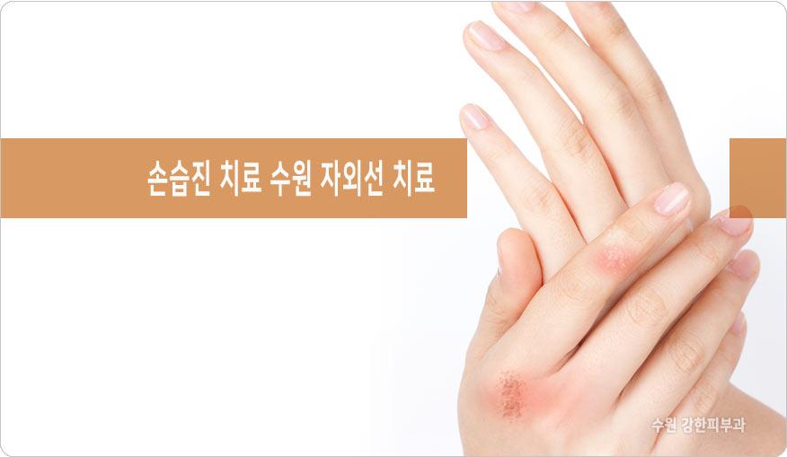 손습진 치료 중요한 이유