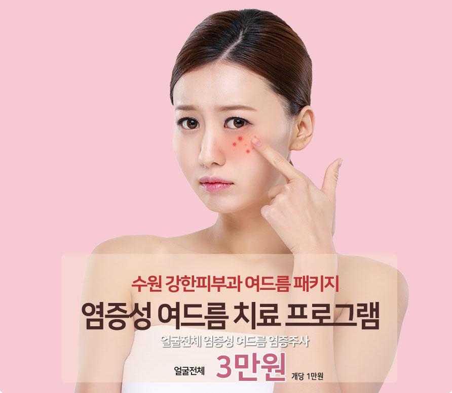 헤어라인 트러블 염증주사 치료