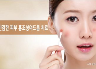 민감한 피부 홍조성여드름