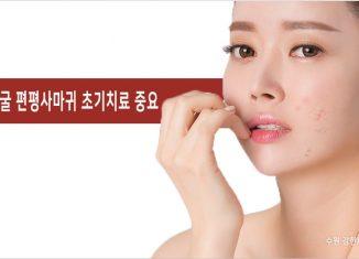 얼굴 편평사마귀 초기치료