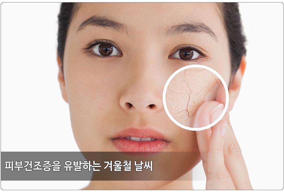 건조한 얼굴 피부관리 필요한 이유