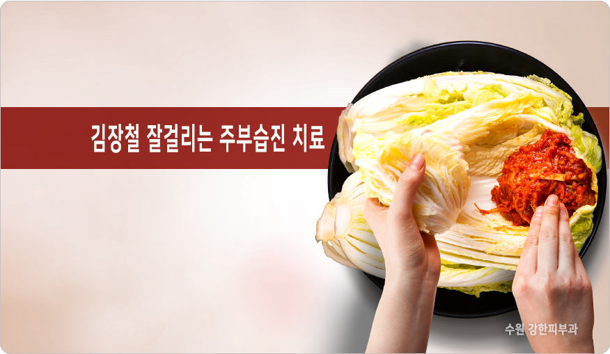 김장철 잘걸리는 주부습진