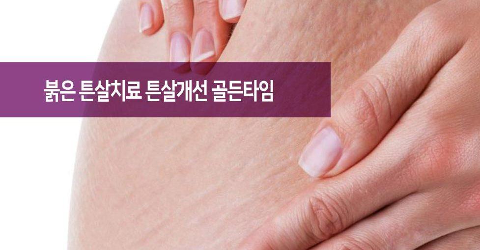 붉은 튼살치료 피부과