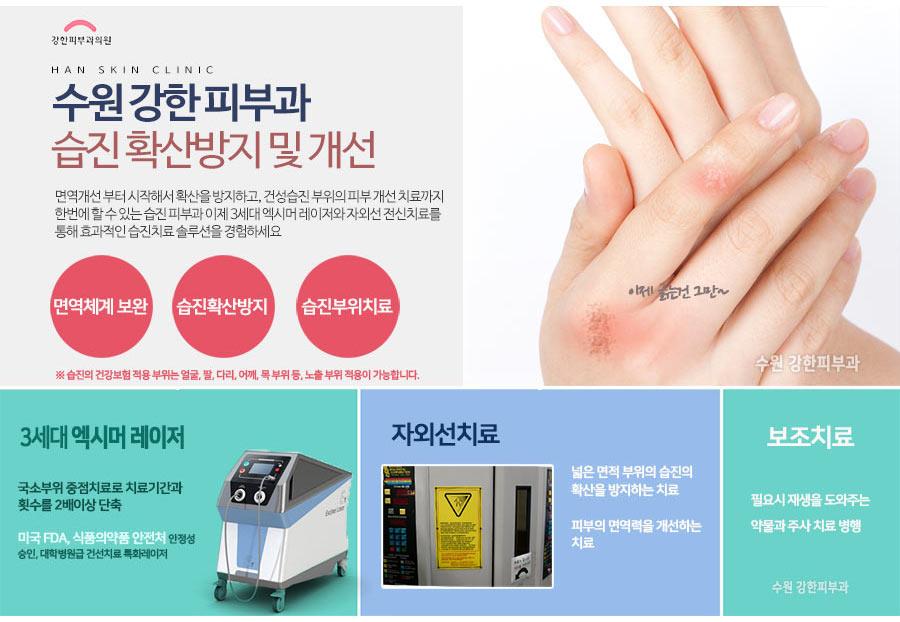 김장철 주부습진 치료