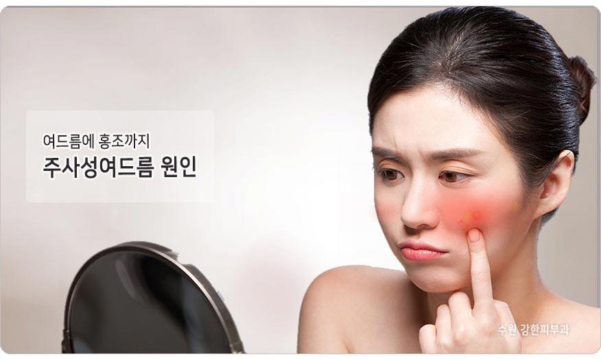 홍조성 여드름 원인