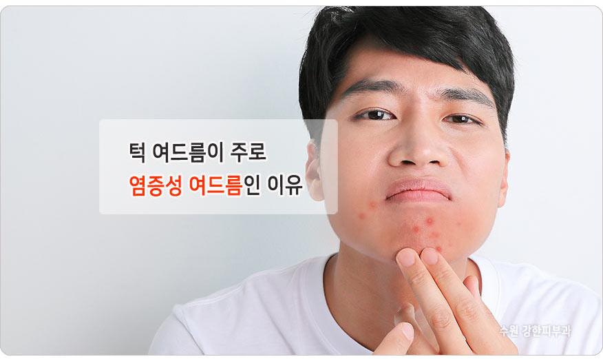 입과 턱주변 여드름 원인