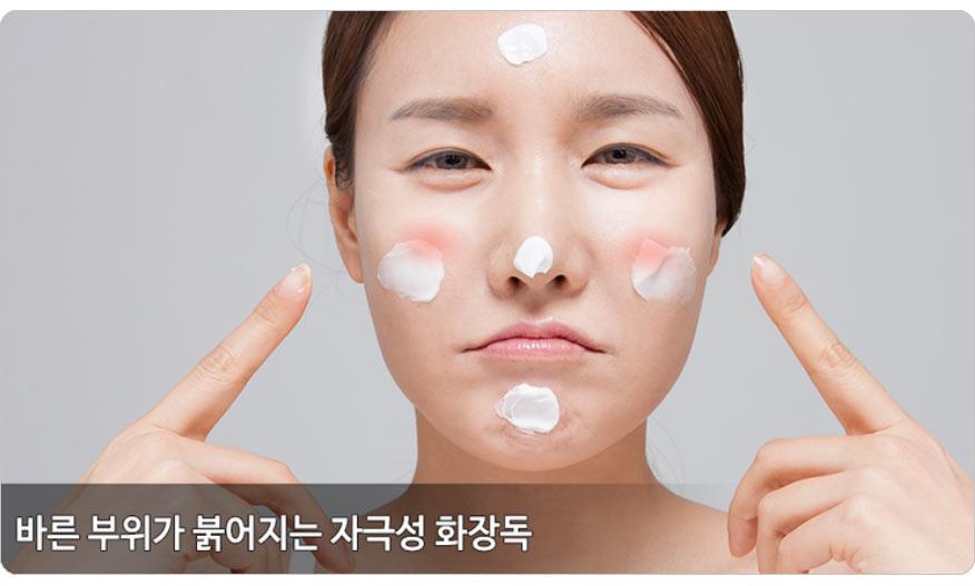 화장품 피부염