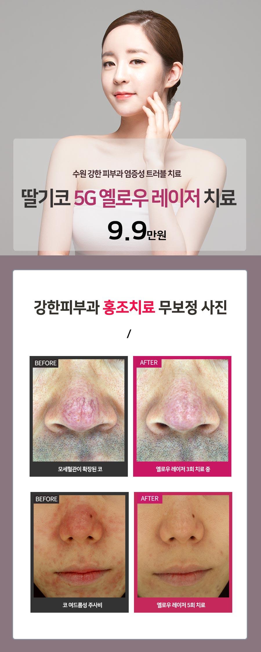 수원 딸기코 치료