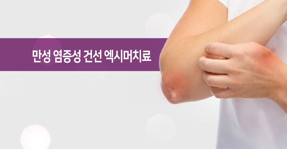 만성 염증성 건선 치료