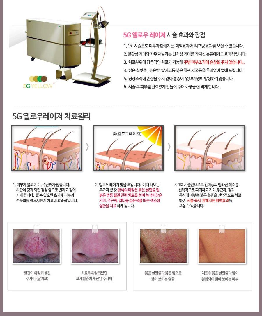 수원 혈관레이저 치료
