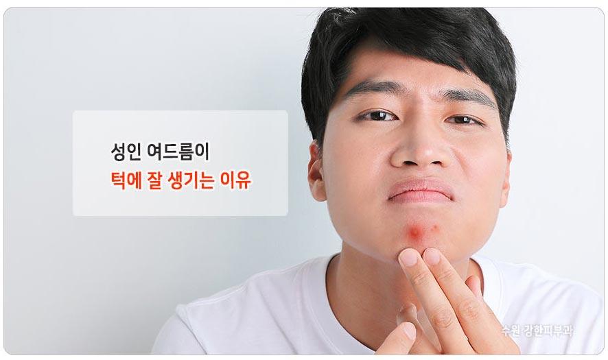 턱과 입주변 성인여드름 잘 생기는 이유