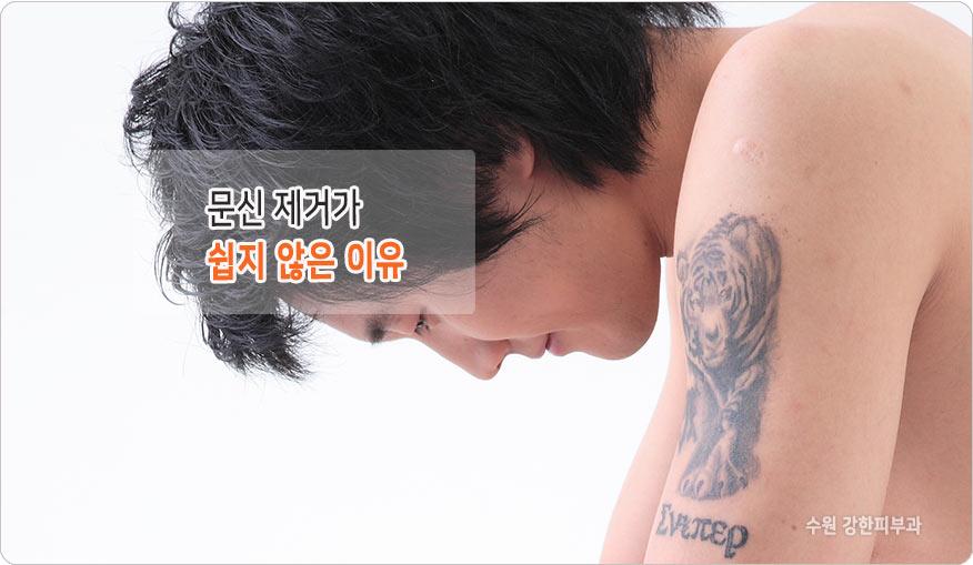 문신제거 횟수 늘어나는 이유