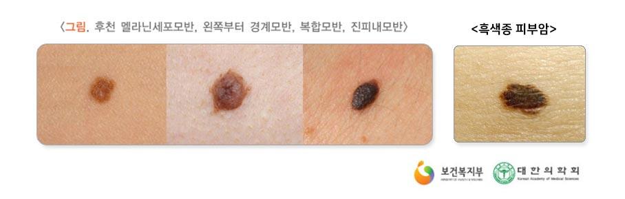 점과 피부암 증상 구분