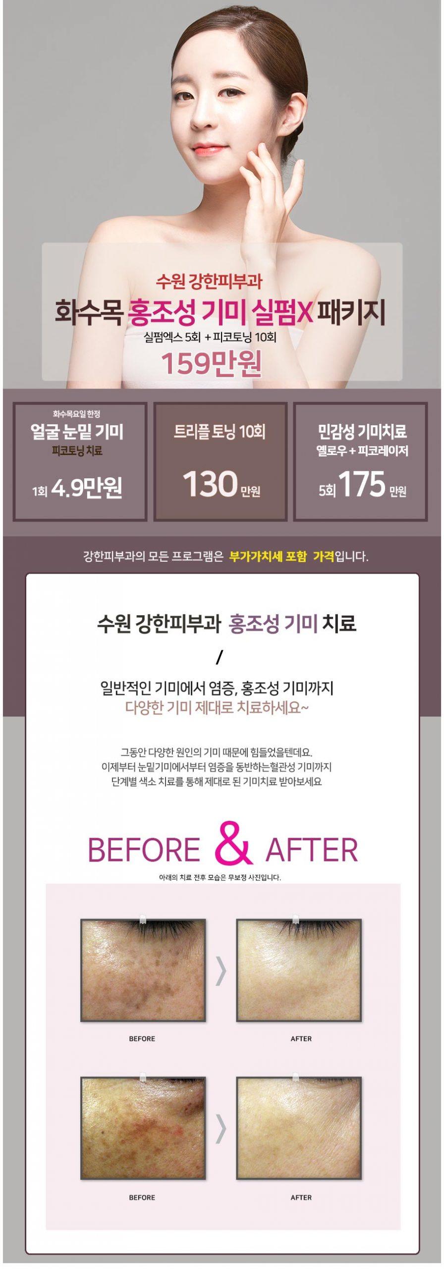 수원 홍조성 기미치료