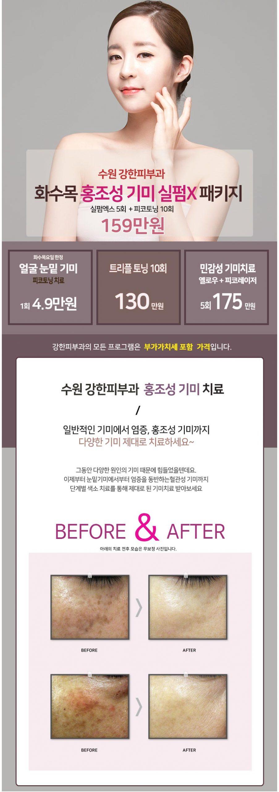 수원 홍조성 기미 치료
