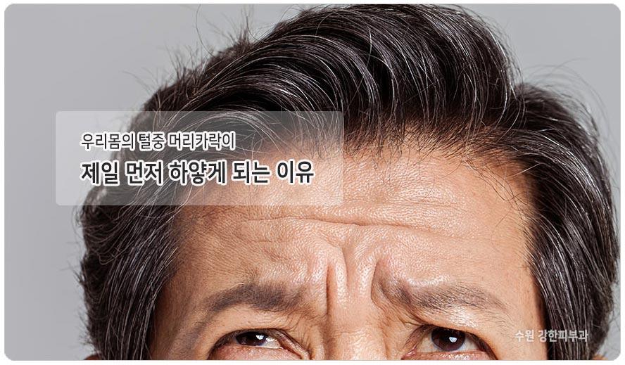 머리카락이 먼저 하얗게 변하는 이유
