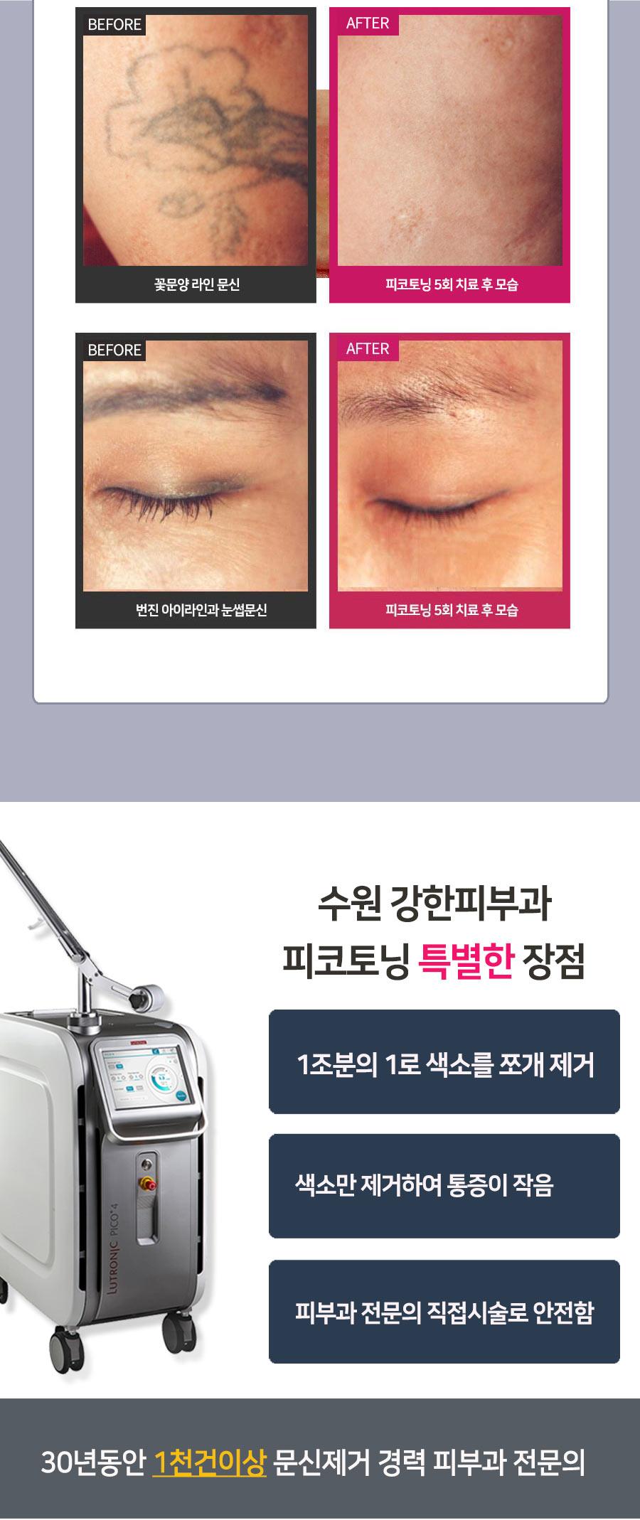 수원 문신제거 전후사진