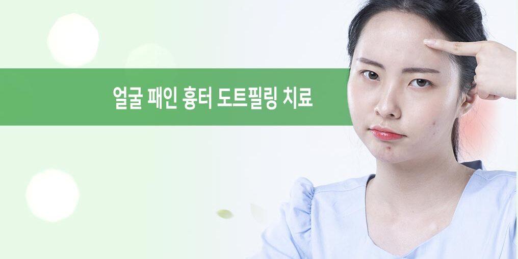 얼굴 패인 흉터 치료