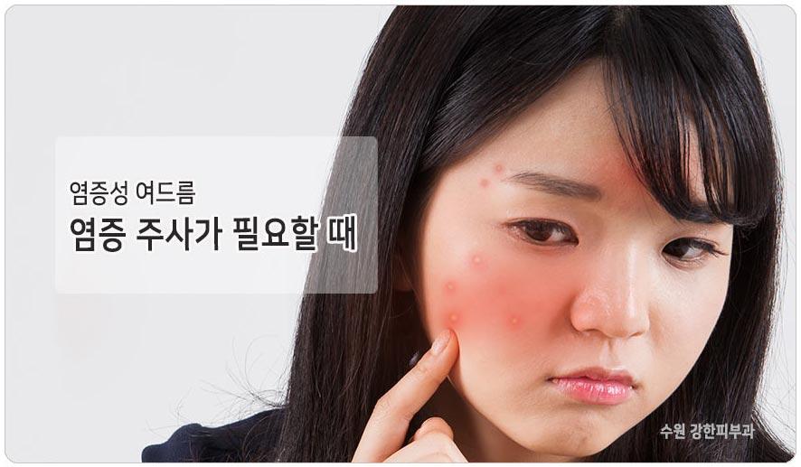 염증성여드름 염증주사 치료