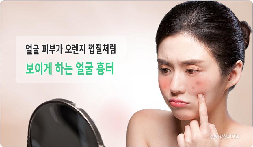 얼굴흉터 특징