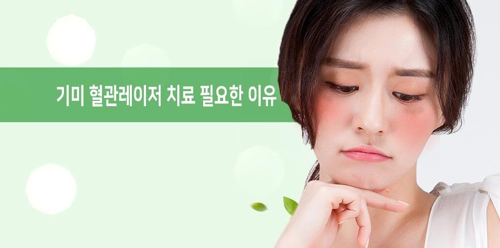 기미 혈관레이저 치료