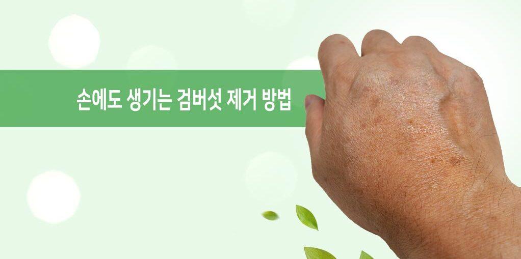 손에도 생기는 검버섯